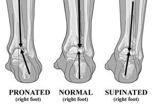 Pronated Supinated diagramoffeet